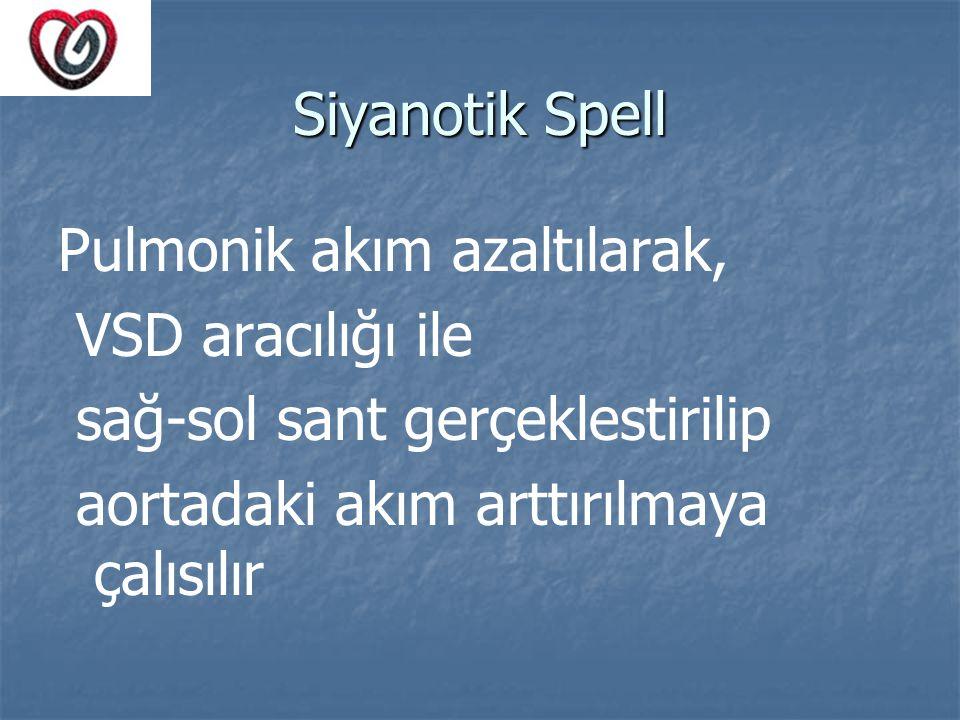 Siyanotik Spell Pulmonik akım azaltılarak, VSD aracılığı ile.