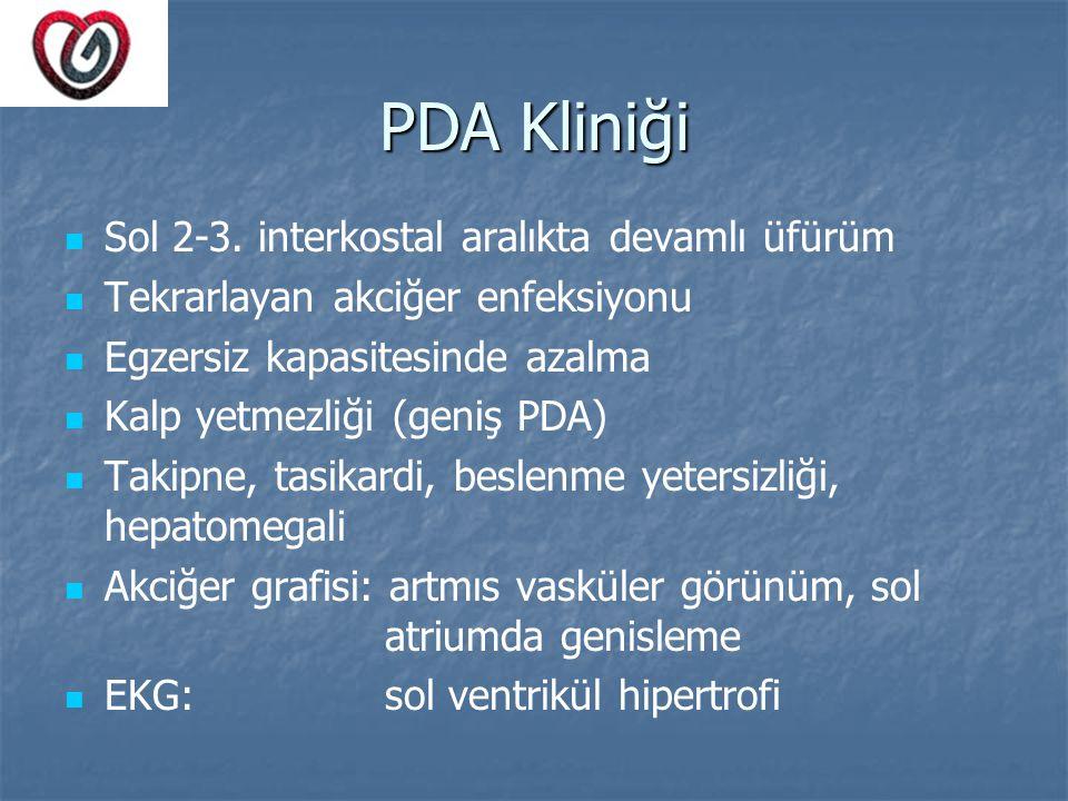 PDA Kliniği Sol 2-3. interkostal aralıkta devamlı üfürüm