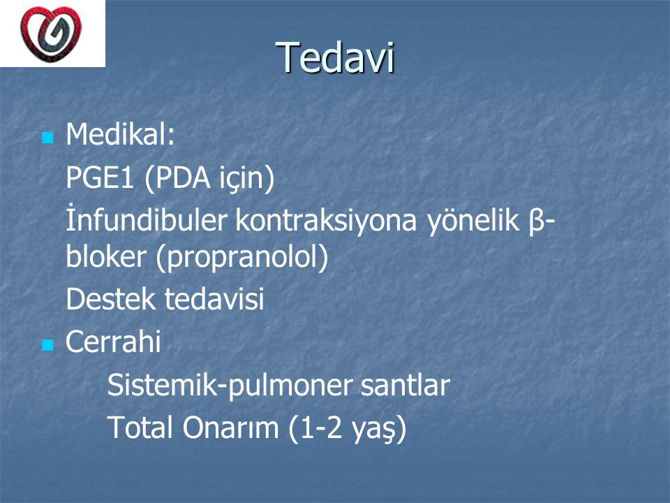 Tedavi Medikal: PGE1 (PDA için)