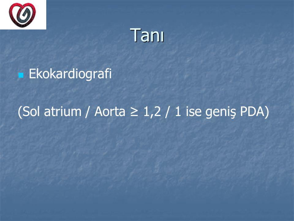 Tanı Ekokardiografi (Sol atrium / Aorta ≥ 1,2 / 1 ise geniş PDA)