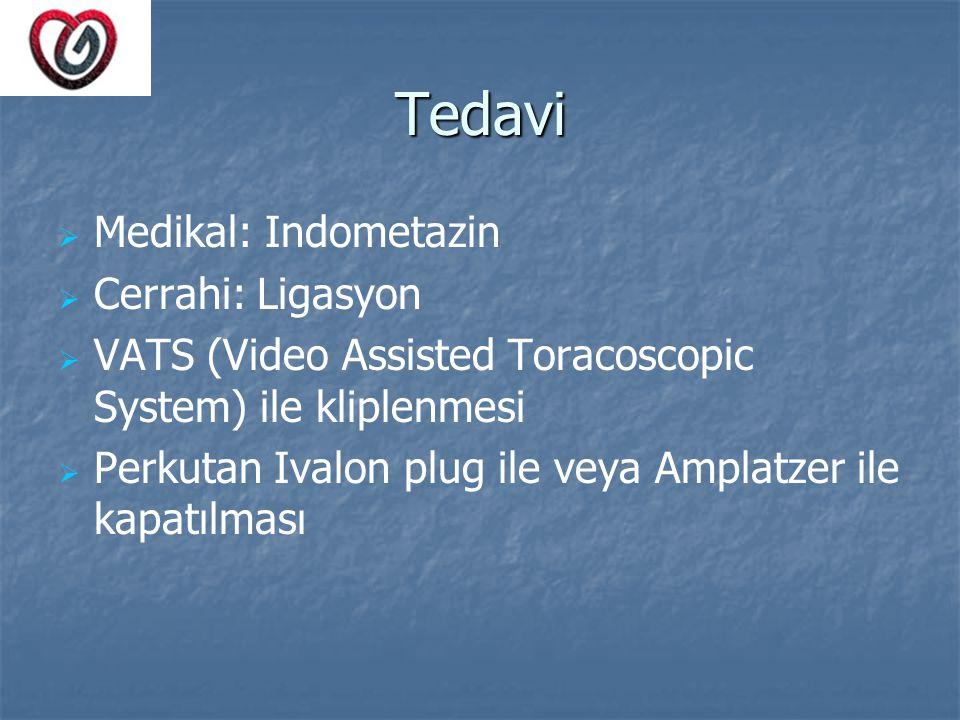 Tedavi Medikal: Indometazin Cerrahi: Ligasyon