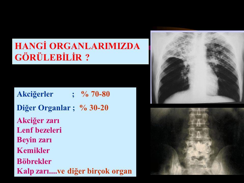 HANGİ ORGANLARIMIZDA GÖRÜLEBİLİR Akciğerler ; % 70-80