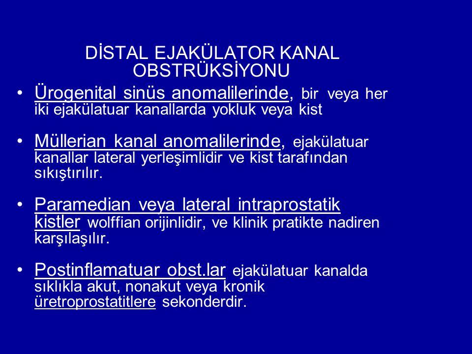DİSTAL EJAKÜLATOR KANAL OBSTRÜKSİYONU