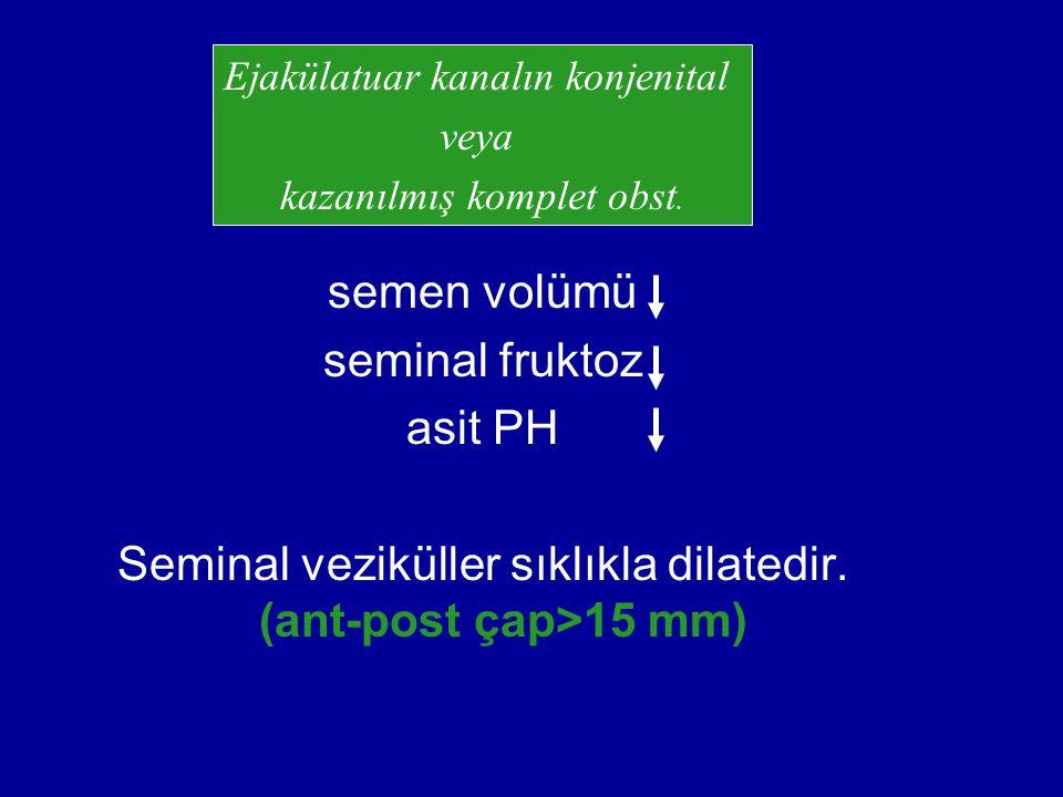 Seminal veziküller sıklıkla dilatedir. (ant-post çap>15 mm)