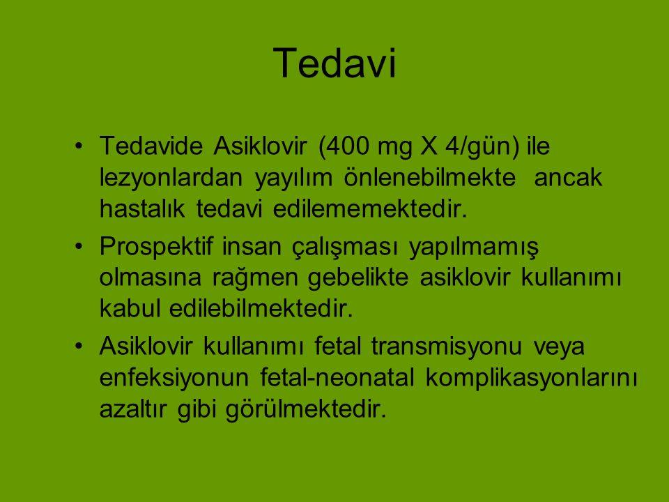 Tedavi Tedavide Asiklovir (400 mg X 4/gün) ile lezyonlardan yayılım önlenebilmekte ancak hastalık tedavi edilememektedir.
