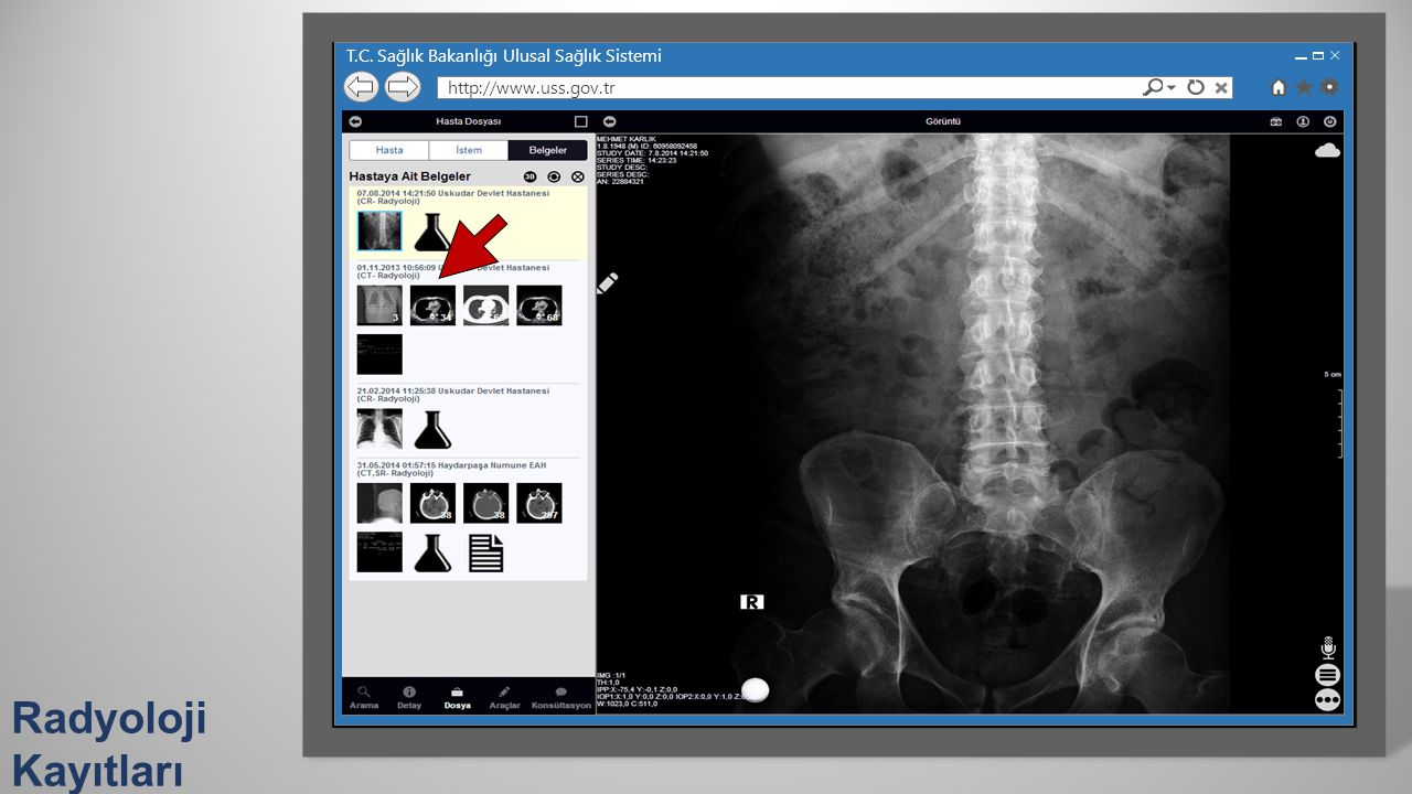 Radyoloji Kayıtları T.C. Sağlık Bakanlığı Ulusal Sağlık Sistemi