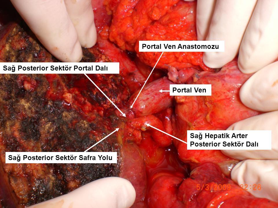Portal Ven Anastomozu Sağ Posterior Sektör Portal Dalı. Portal Ven. Sağ Hepatik Arter Posterior Sektör Dalı.