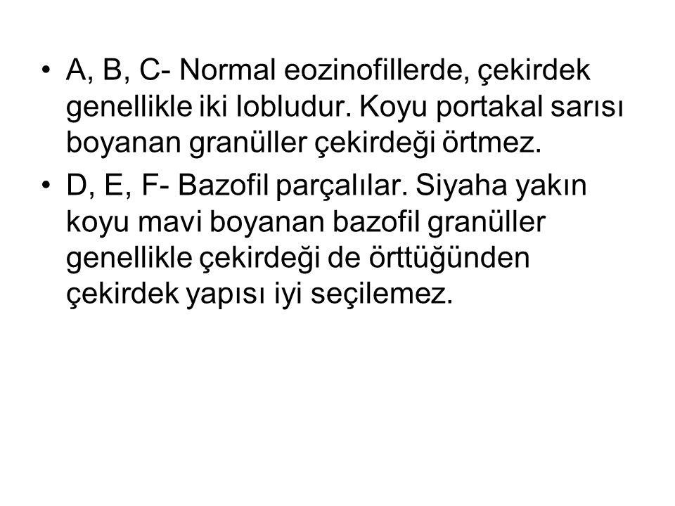 A, B, C- Normal eozinofillerde, çekirdek genellikle iki lobludur