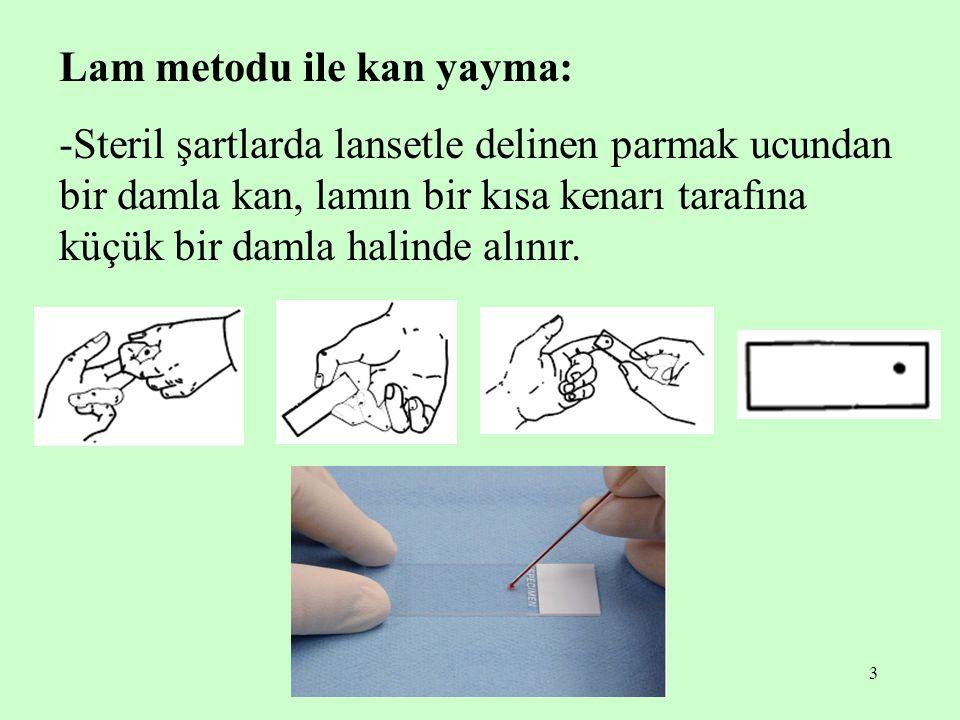 Lam metodu ile kan yayma: