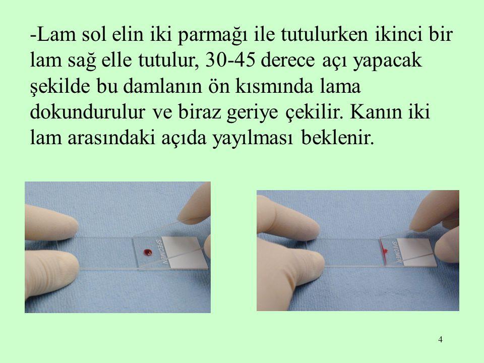 -Lam sol elin iki parmağı ile tutulurken ikinci bir lam sağ elle tutulur, 30-45 derece açı yapacak şekilde bu damlanın ön kısmında lama dokundurulur ve biraz geriye çekilir.