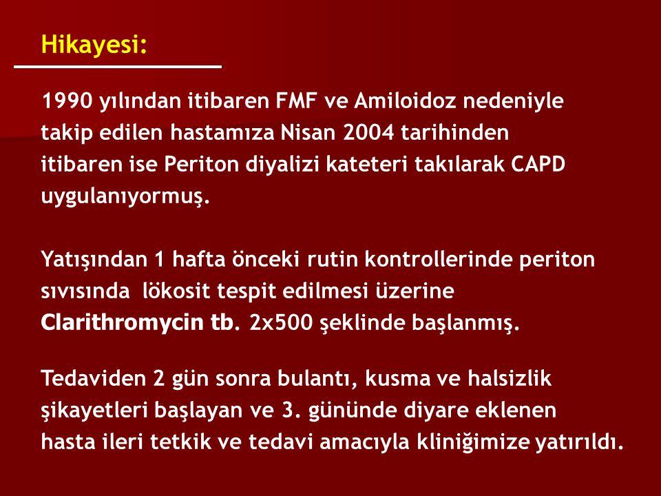 Hikayesi: 1990 yılından itibaren FMF ve Amiloidoz nedeniyle