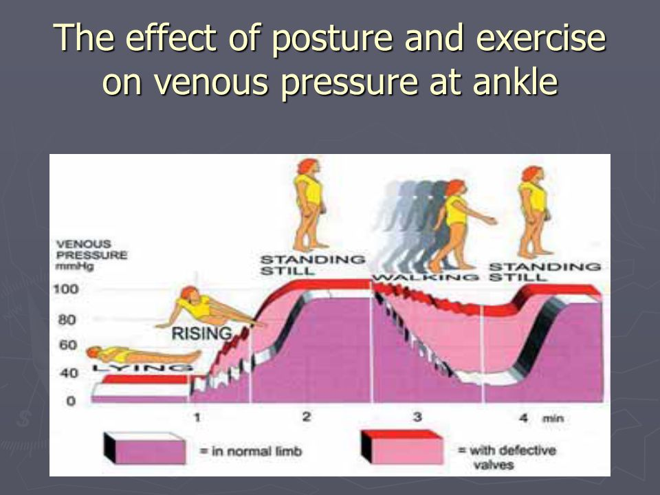 The effect of posture and exercise on venous pressure at ankle