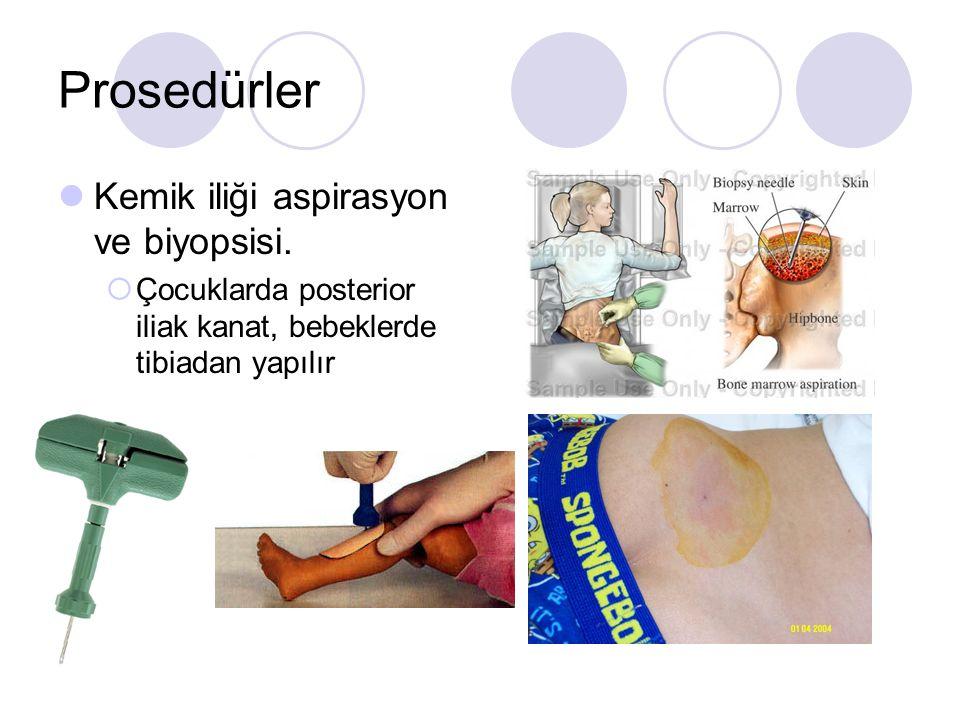Prosedürler Kemik iliği aspirasyon ve biyopsisi.