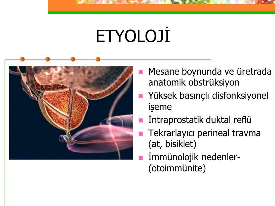 ETYOLOJİ Mesane boynunda ve üretrada anatomik obstrüksiyon