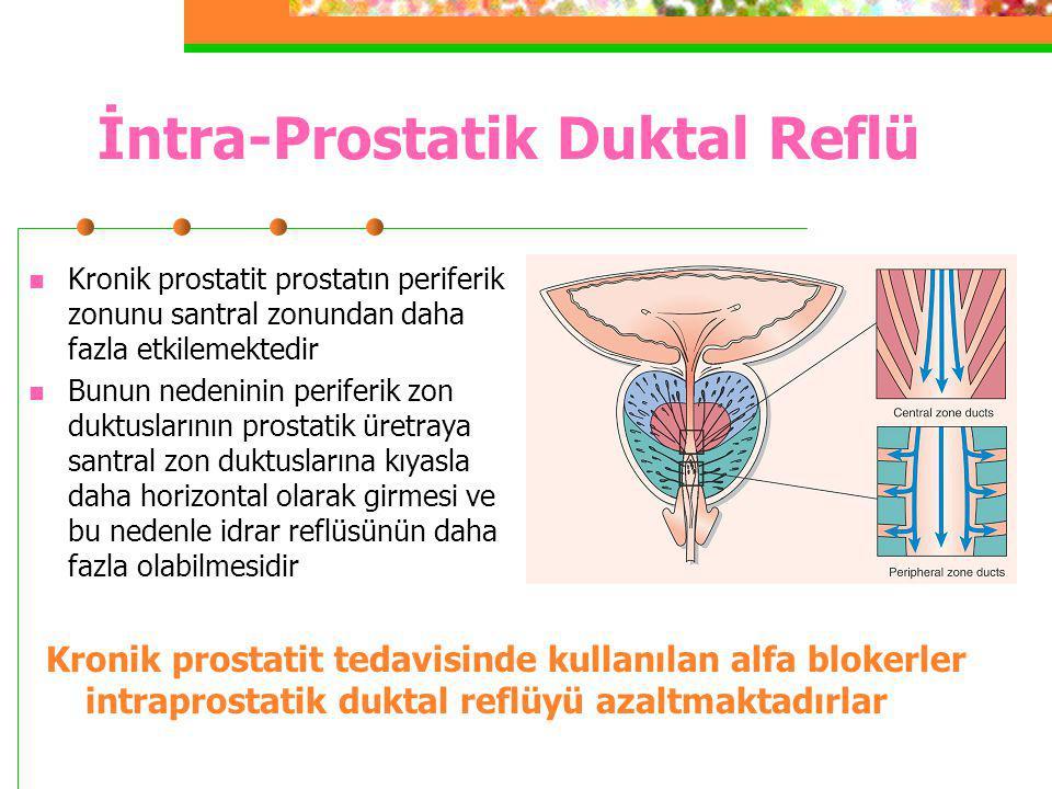 İntra-Prostatik Duktal Reflü