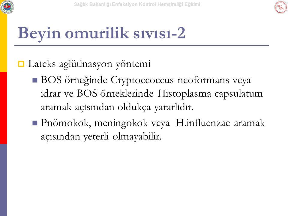 Beyin omurilik sıvısı-2