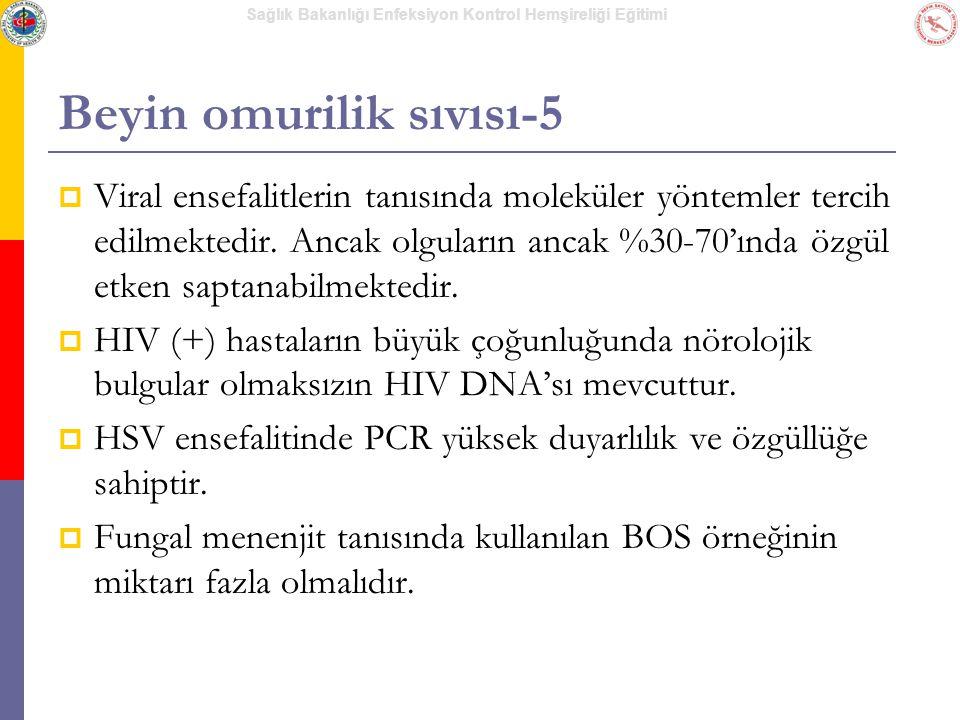 Beyin omurilik sıvısı-5