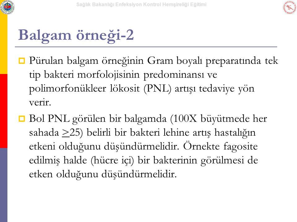 Balgam örneği-2