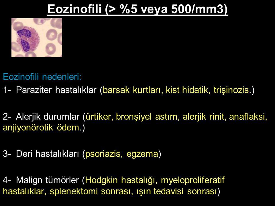 Eozinofili (> %5 veya 500/mm3)