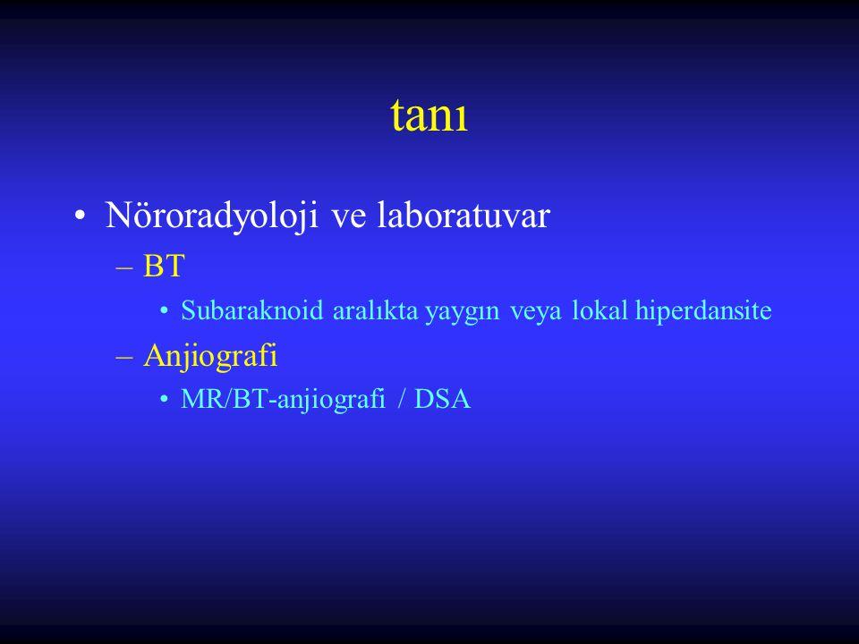 tanı Nöroradyoloji ve laboratuvar BT Anjiografi