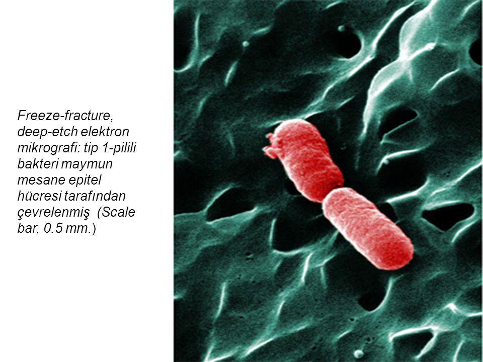 Freeze-fracture, deep-etch elektron mikrografi: tip 1-pilili bakteri maymun mesane epitel hücresi tarafından çevrelenmiş (Scale bar, 0.5 mm.)