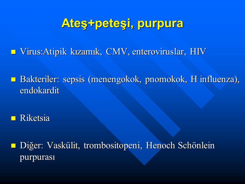 Ateş+peteşi, purpura Virus:Atipik kızamık, CMV, enteroviruslar, HIV