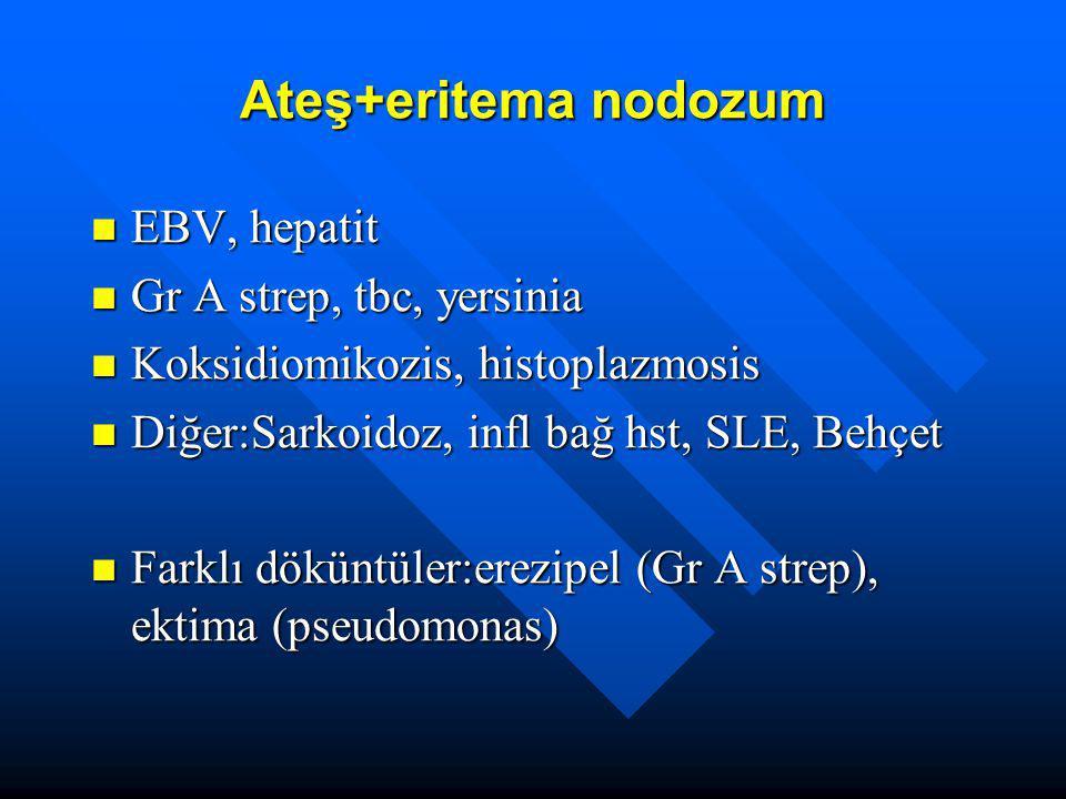 Ateş+eritema nodozum EBV, hepatit Gr A strep, tbc, yersinia