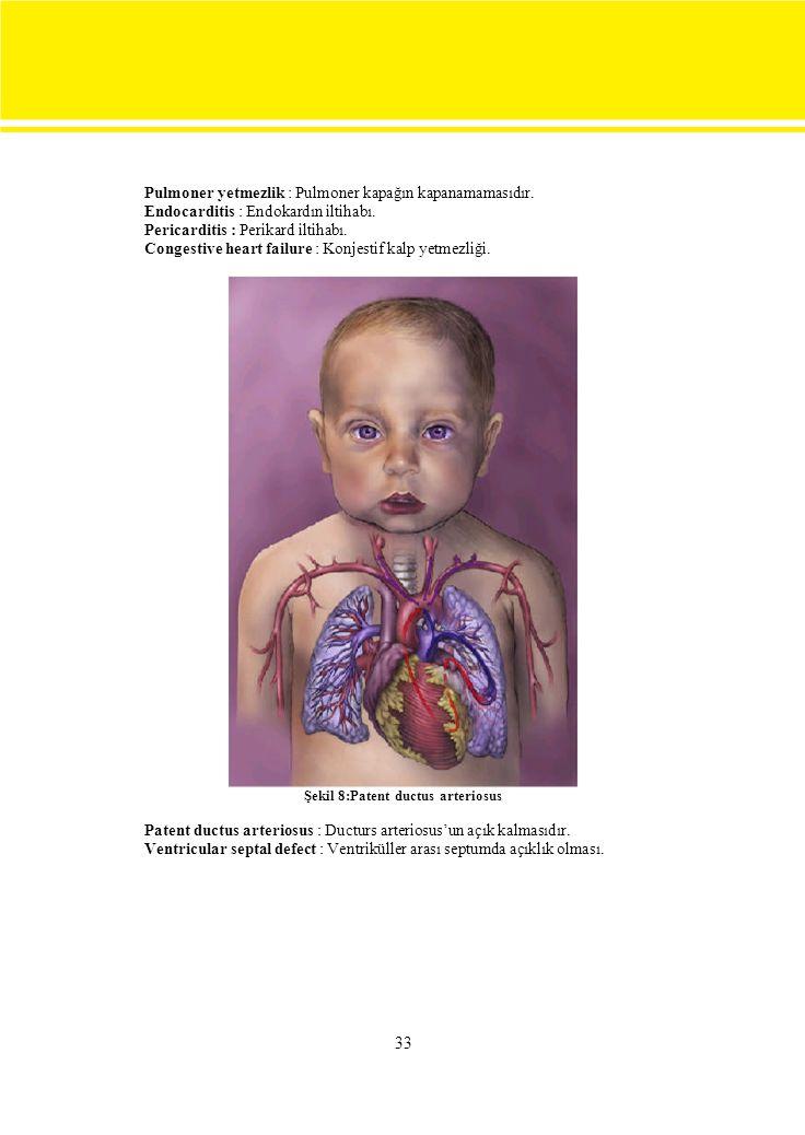 33 Pulmoner yetmezlik : Pulmoner kapağın kapanamamasıdır.