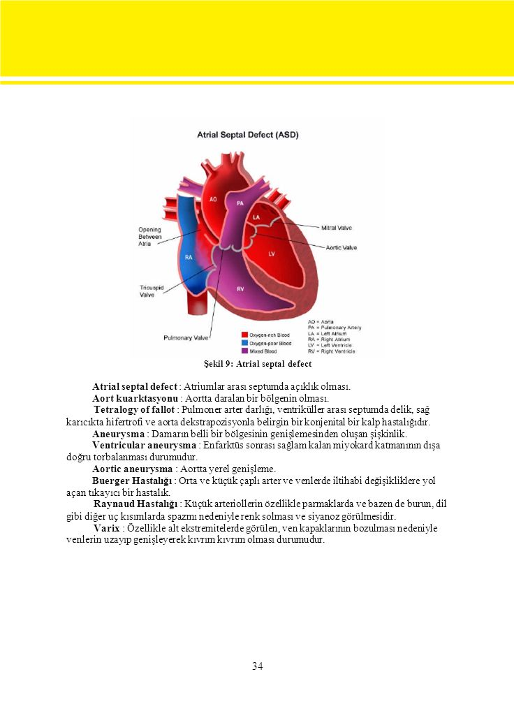Şekil 9: Atrial septal defect