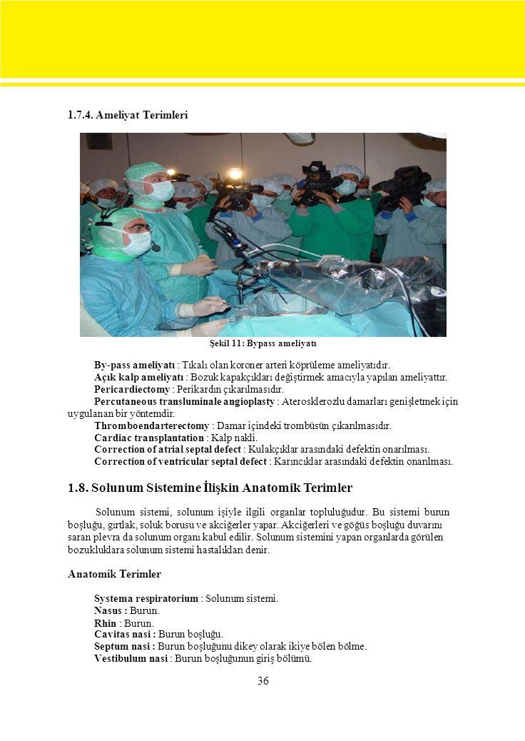 1.7.4. Ameliyat Terimleri Şekil 11: Bypass ameliyatı. By-pass ameliyatı : Tıkalı olan koroner arteri köprüleme ameliyatıdır.
