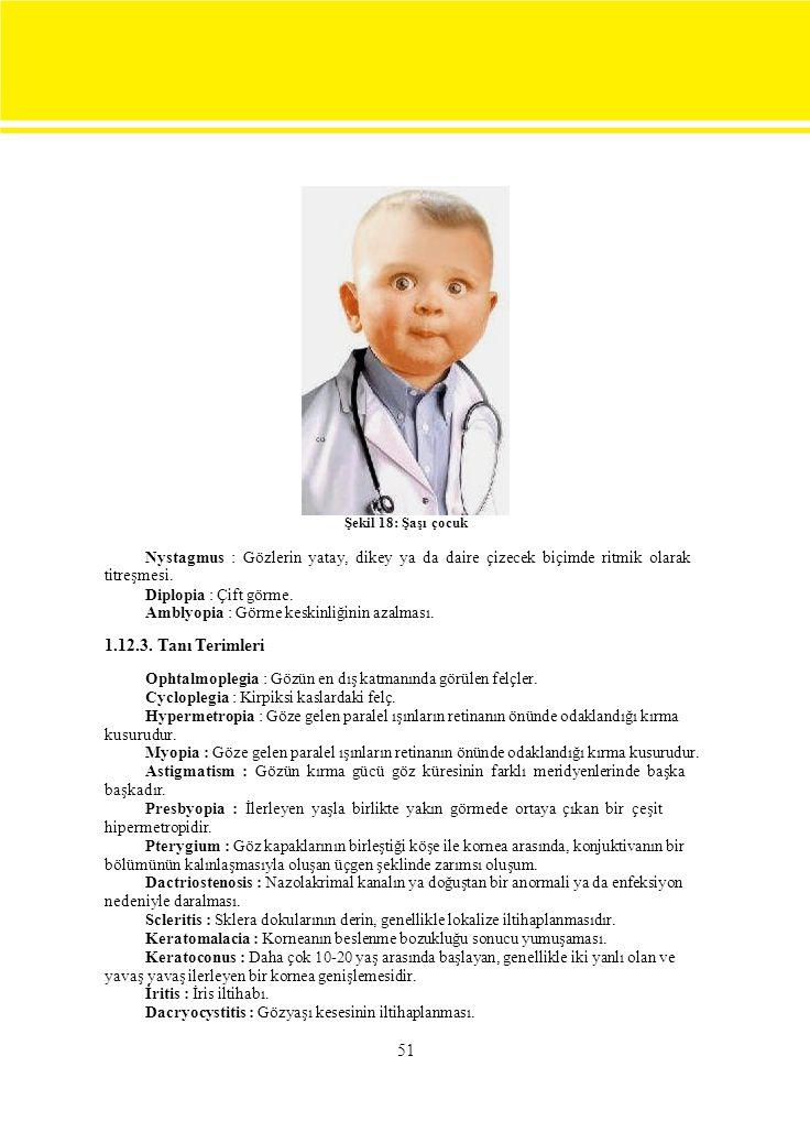 Şekil 18: Şaşı çocuk Nystagmus : Gözlerin yatay, dikey ya da daire çizecek biçimde ritmik olarak.