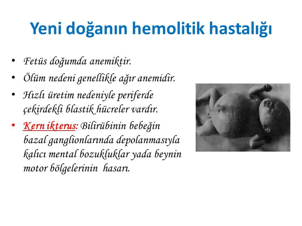 Yeni doğanın hemolitik hastalığı