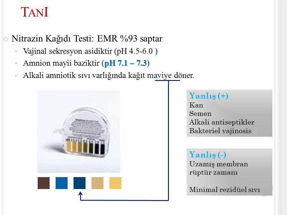 TanI Nitrazin Kağıdı Testi: EMR %93 saptar