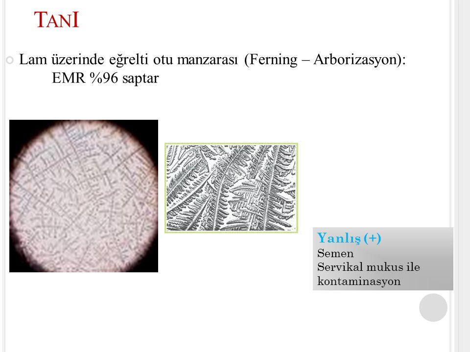 TanI Lam üzerinde eğrelti otu manzarası (Ferning – Arborizasyon): EMR %96 saptar. Yanlış (+) Semen.