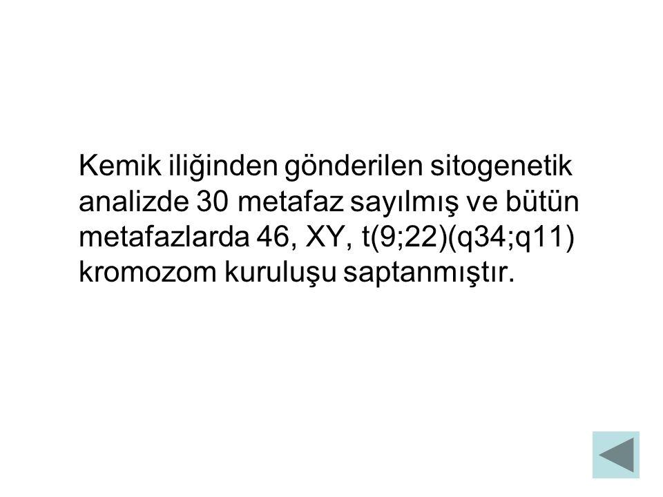 Kemik iliğinden gönderilen sitogenetik analizde 30 metafaz sayılmış ve bütün metafazlarda 46, XY, t(9;22)(q34;q11) kromozom kuruluşu saptanmıştır.