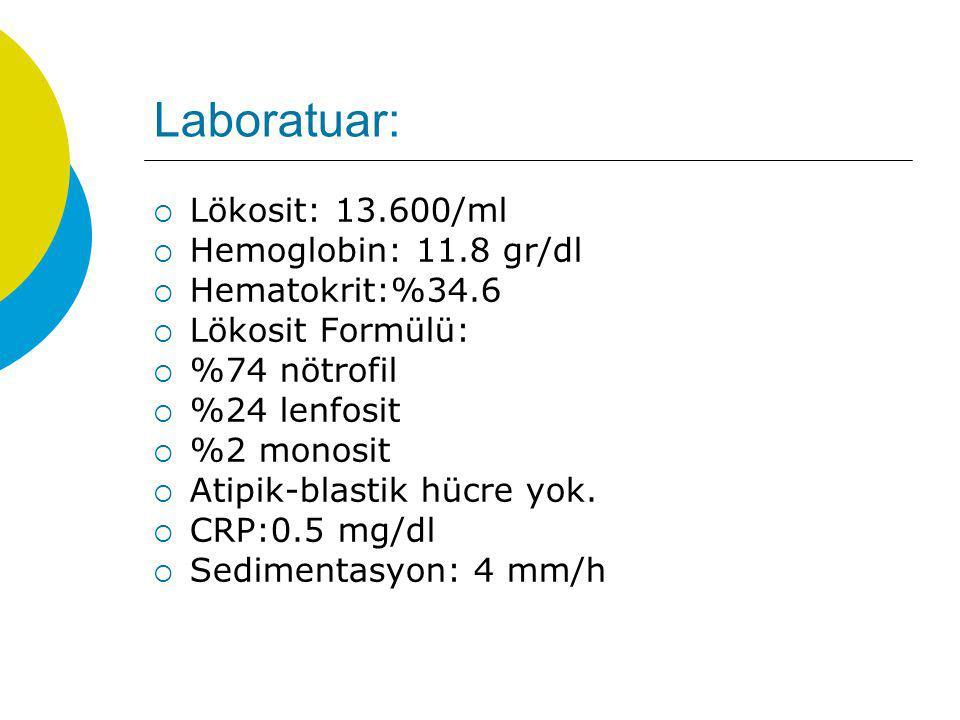 Laboratuar: Lökosit: 13.600/ml Hemoglobin: 11.8 gr/dl Hematokrit:%34.6