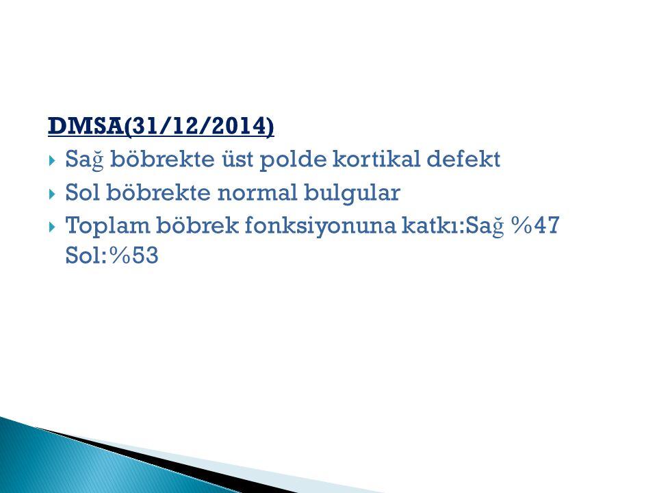 DMSA(31/12/2014) Sağ böbrekte üst polde kortikal defekt.