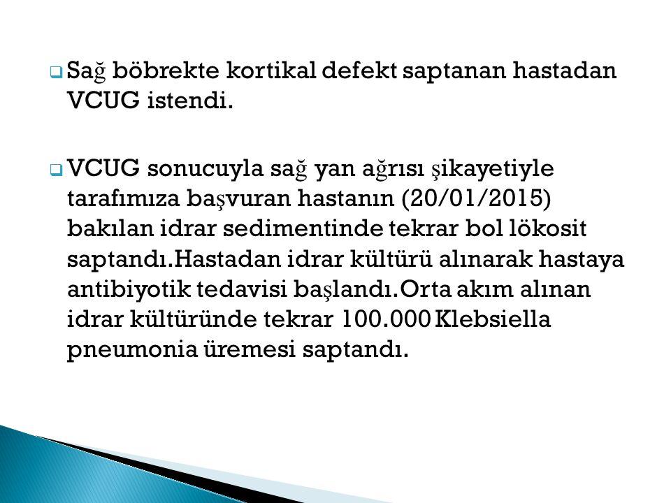 Sağ böbrekte kortikal defekt saptanan hastadan VCUG istendi.