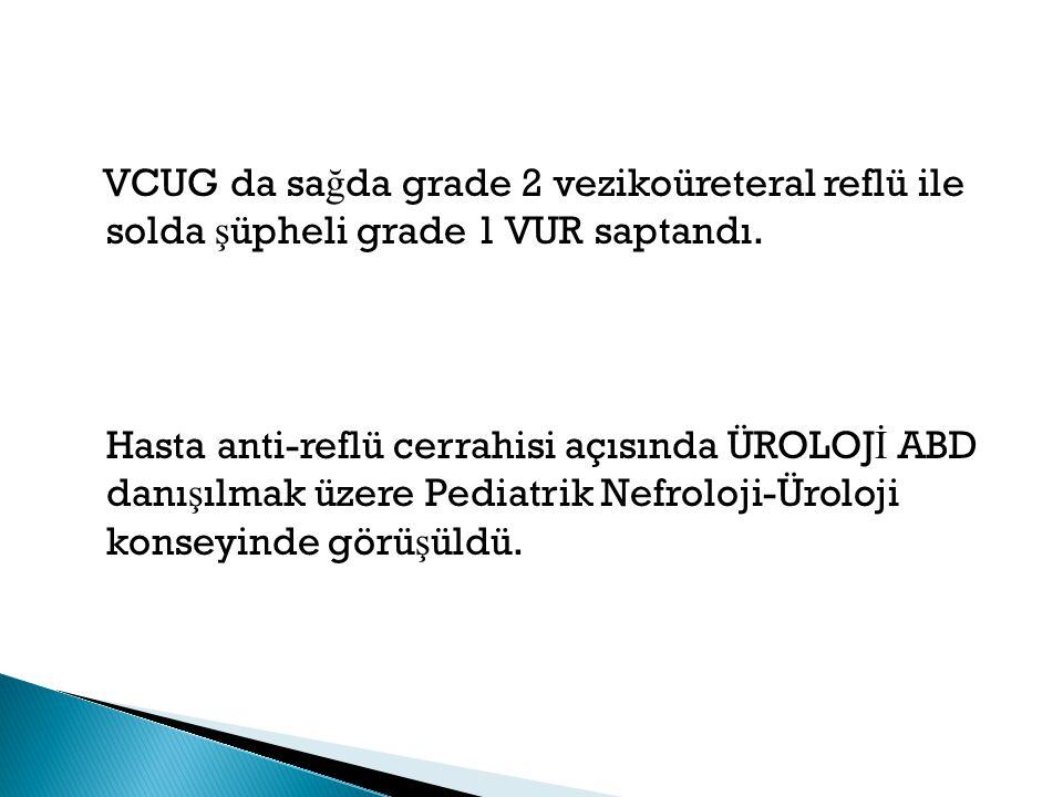 VCUG da sağda grade 2 vezikoüreteral reflü ile solda şüpheli grade 1 VUR saptandı.