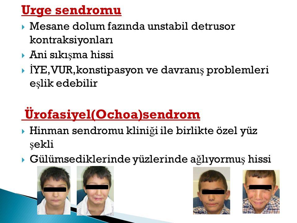 Ürofasiyel(Ochoa)sendrom