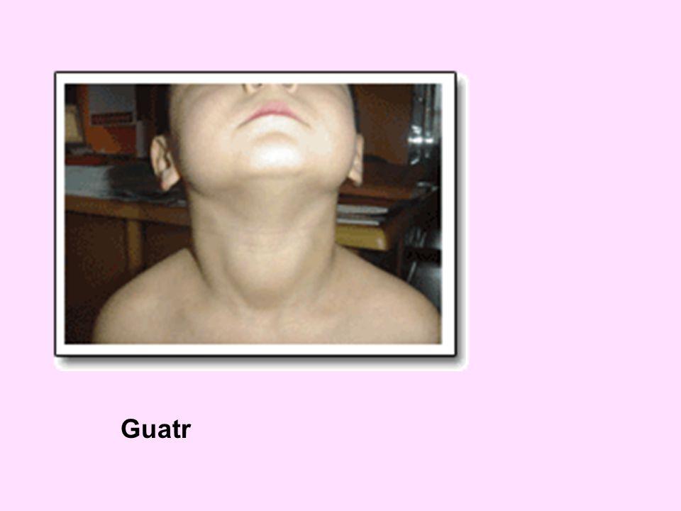 Guatr