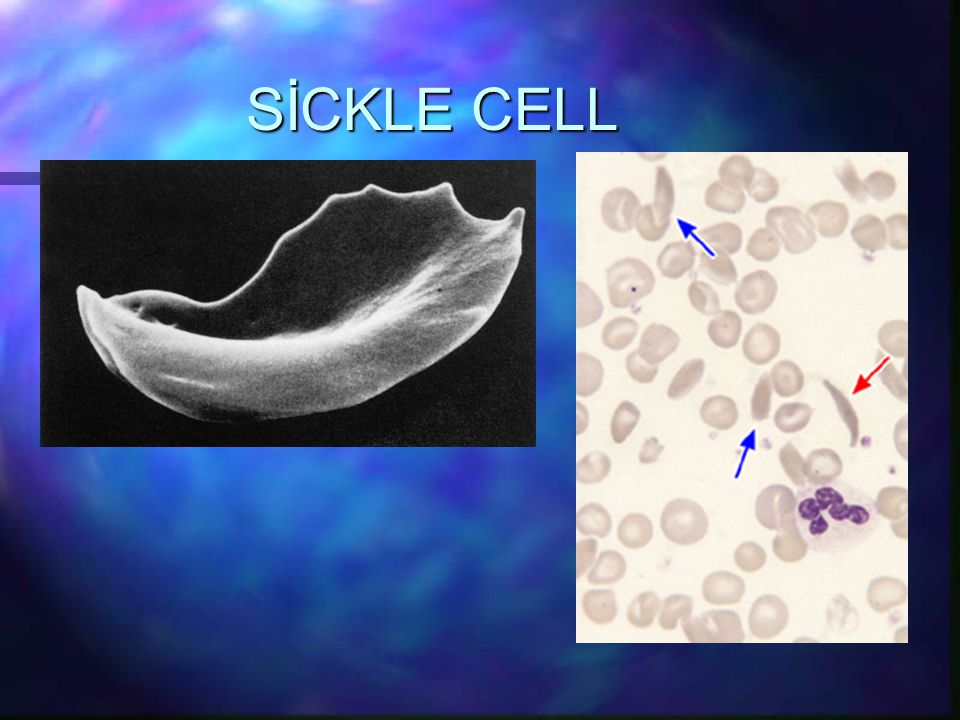 SİCKLE CELL