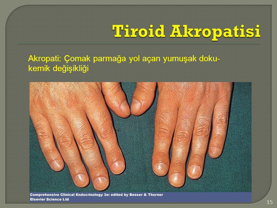 Tiroid Akropatisi Akropati: Çomak parmağa yol açan yumuşak doku-kemik değişikliği