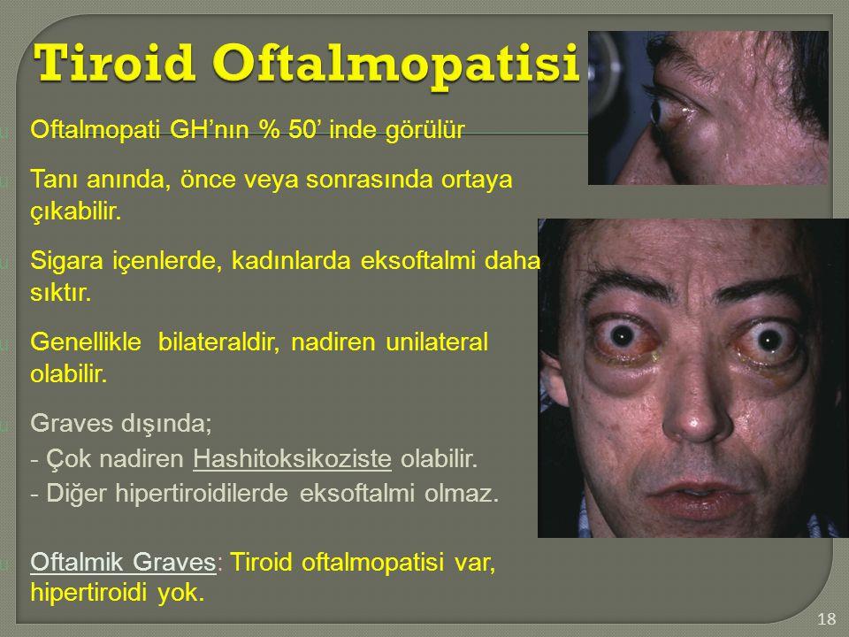 Tiroid Oftalmopatisi Oftalmopati GH'nın % 50' inde görülür