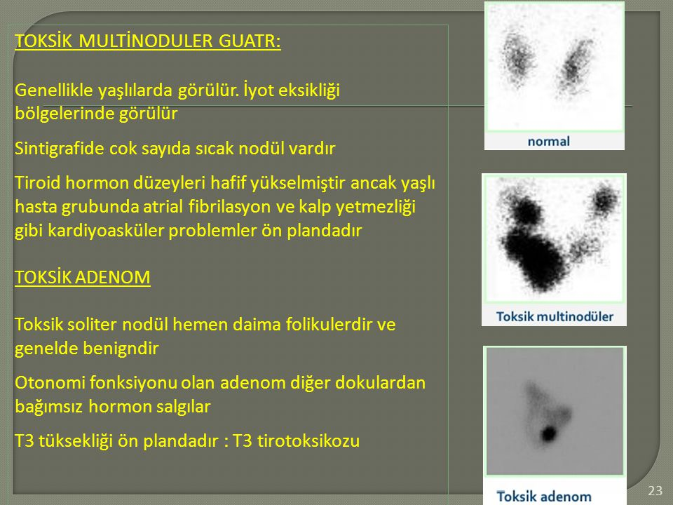 TOKSİK MULTİNODULER GUATR: