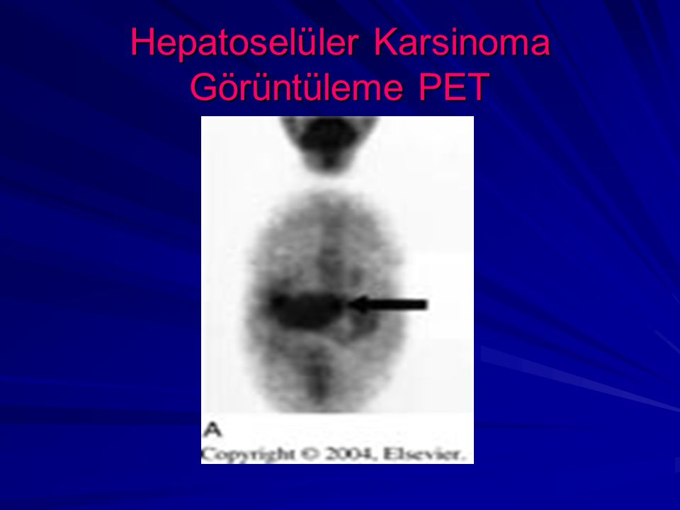 Hepatoselüler Karsinoma Görüntüleme PET