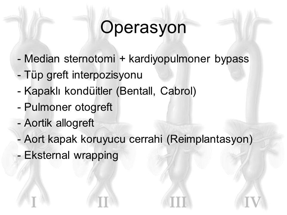 Operasyon - Median sternotomi + kardiyopulmoner bypass