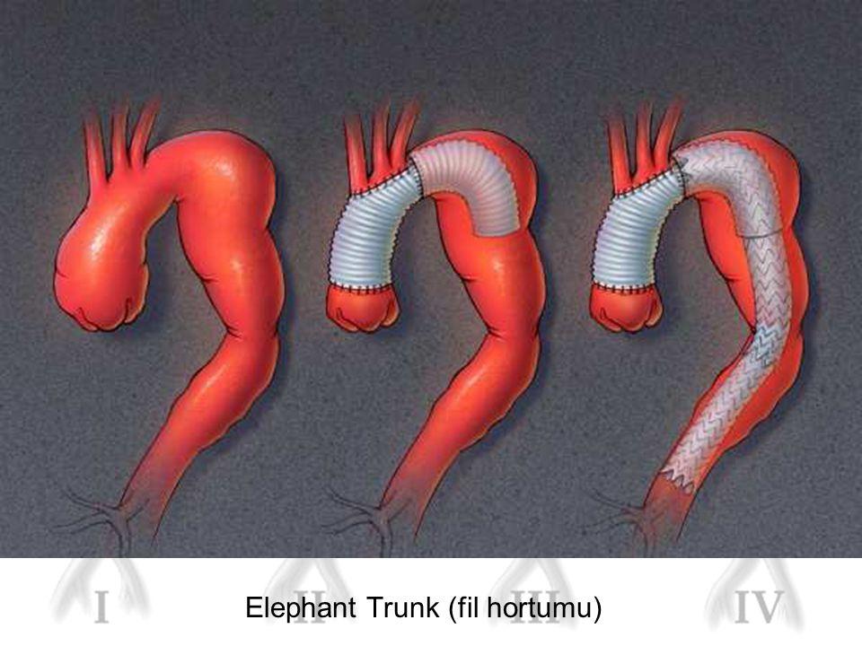 Elephant Trunk (fil hortumu)