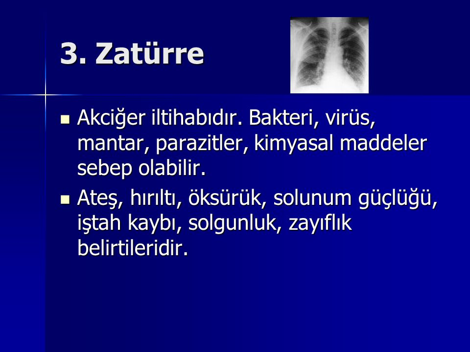 3. Zatürre Akciğer iltihabıdır. Bakteri, virüs, mantar, parazitler, kimyasal maddeler sebep olabilir.