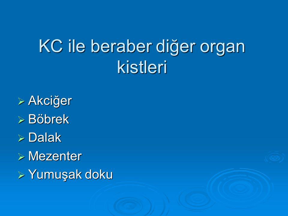 KC ile beraber diğer organ kistleri